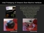 Il casco a ultrasuoni potrà minimizzare le lesioni cerebrali dei militari americani