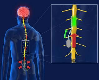 """Il chip contro il dolore cronico invia degli impulsi per """"distrarre"""" il cervello dal pensiero del dolore"""