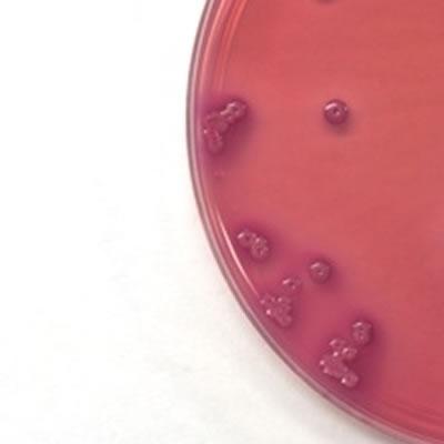 biodiesel dai batteri escherichia coli