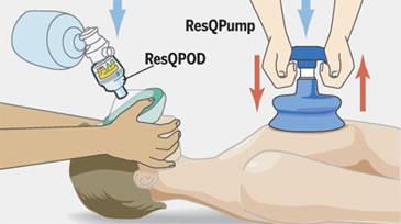 ResQPump e ResQPod aiutano il personale sanitario ad eseguire la rianimazione cardiopolmonare
