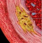 sensore MEMS termico aterosclerosi