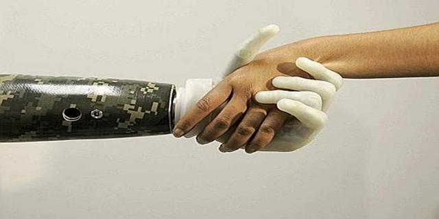 Iraq Veteran Bionic Hand