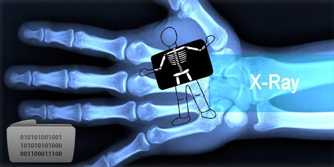 X_ray_imaging