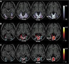 Figura 1: L'immagine della risonanza del cervello durante la visione del videogioco [Fonte Articolo: Learning to Associate Orientation with Color in Early Visual Areas by Associative Decoded fMRI Neurofeedback]