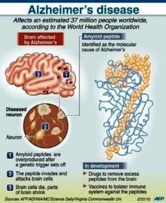usare le onde dei cellulari per curare l'Alzheimer