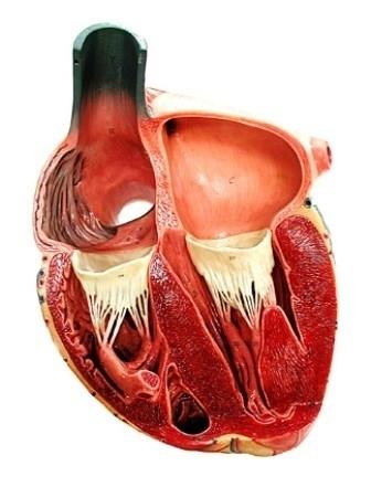 donne ed infarto