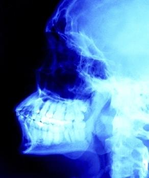 i raggi x aumenterebbero l'insorgenza del cancro alla tiroide