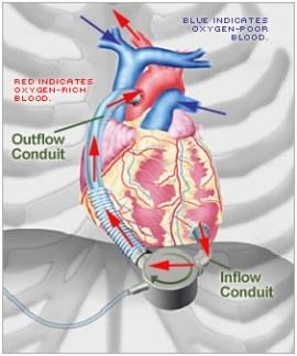 Dura Heart LVAD è un dispositivo progettato per ridurre al minimo il rischio di trombi post-impianto