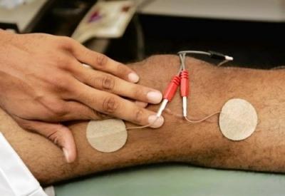 elettrostimolazione cura il dolore cronico