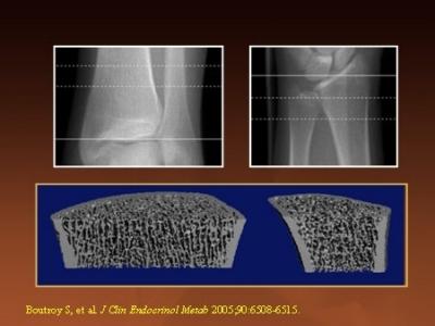 tomografia HRpQCT