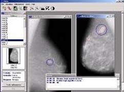 La mammografia con CAD aiuta a individuare con maggiore precisione anomalie al seno