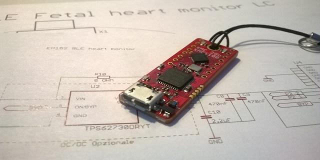Monitoraggio del battito cardiaco fetale progetto hardware