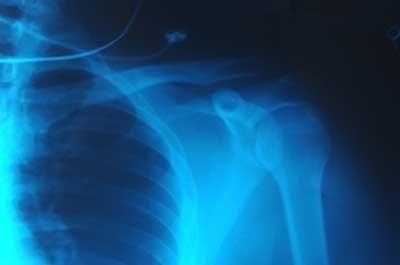 I raggi X permettono di vedere le ossa attraverso i tessuti