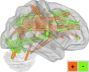 La risonanza magnetica fcMRI permette di valutare le curve generate da persone di età diverse