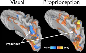 La risonanza magnetica permette di vedere nel cervello il movimento del braccio