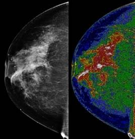 Il sistema MED-SEG, inventato per le immagini satellitari, viene usato ora per le tecniche di imaging medico