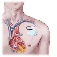Il software LIA per defibrillatori riduce del 50% il rischio di scosse inutili al paziente