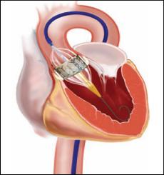 La valvola aortica TAVI viene utilizzata per i pazienti troppo anziani per poter sopportare un intervento a cuore aperto